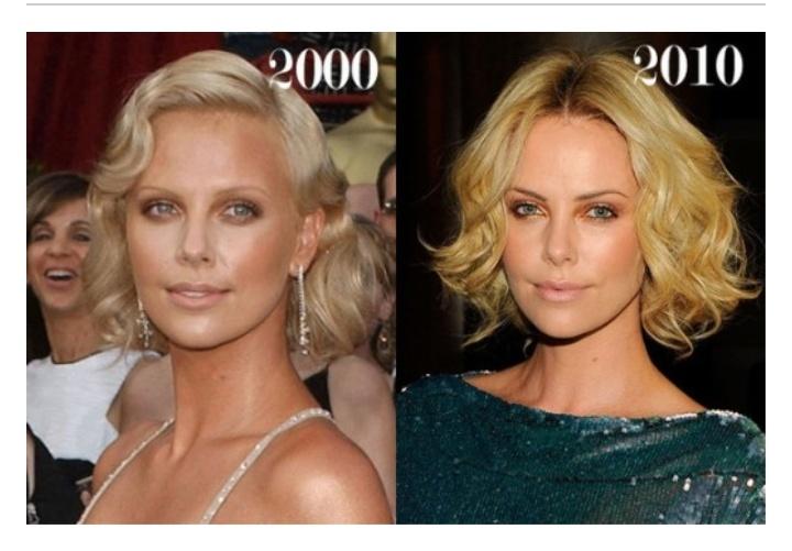 Charlize Theron Botox