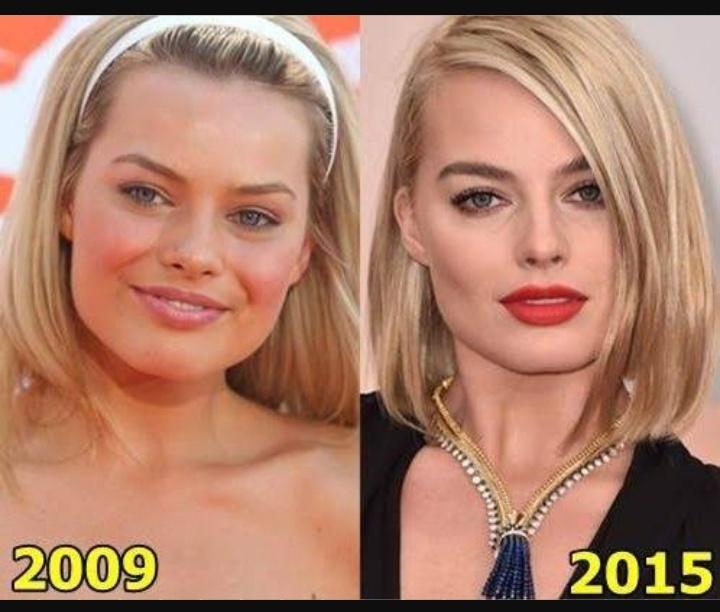 Margot Robbie's Plastic Surgery